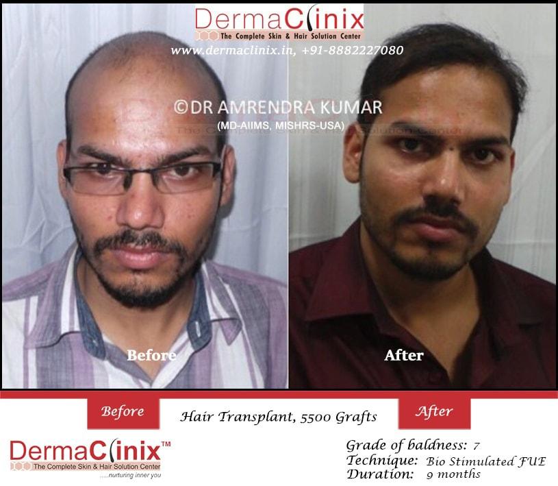 30840cac318713b4ecc0fe2b73ccb43487d2f_hair-transplant-result-8.jpg