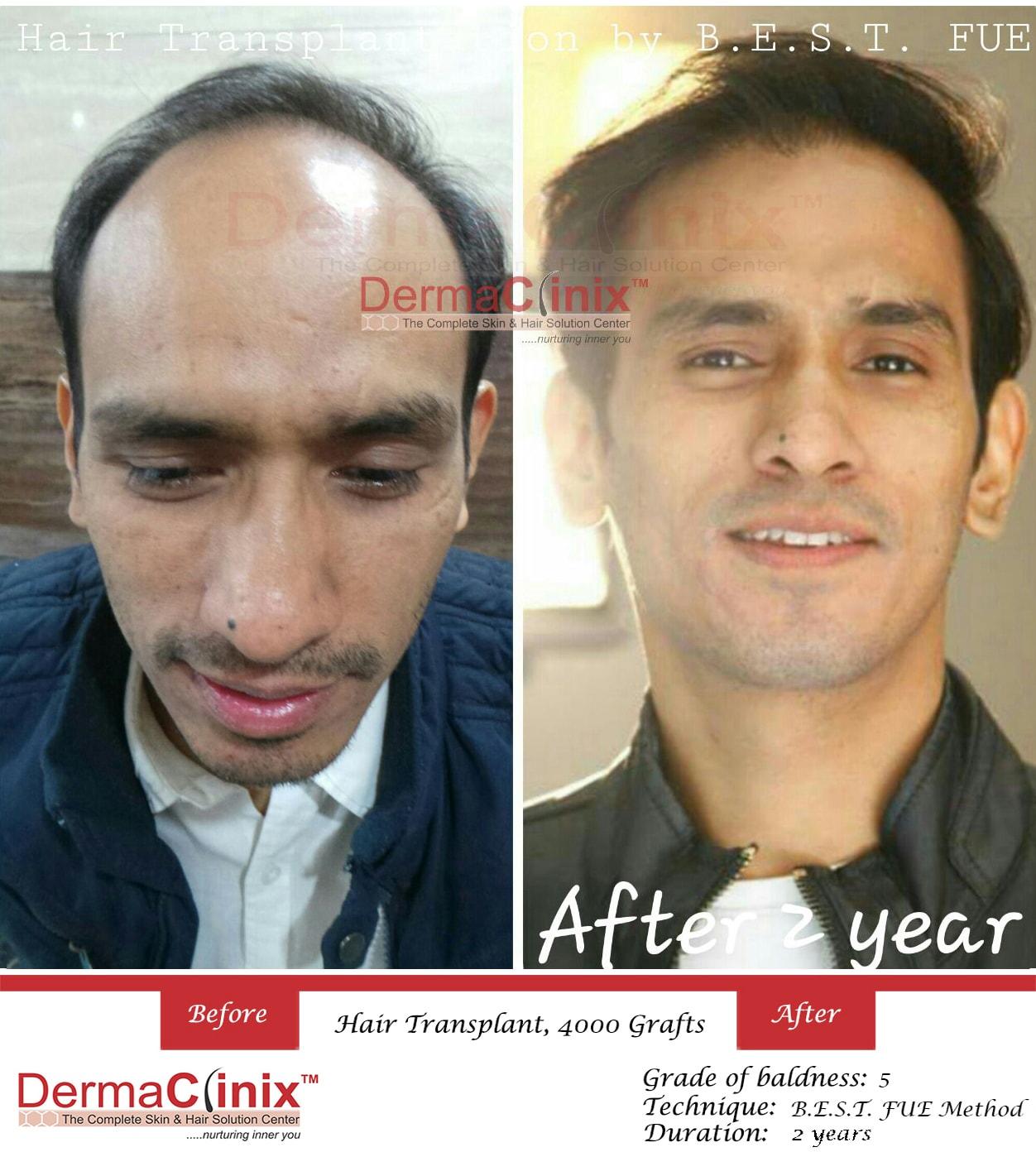 31391dccb47c8664f0f33e57c5f291b46290d_BEST-fue-hair-transplant.jpg