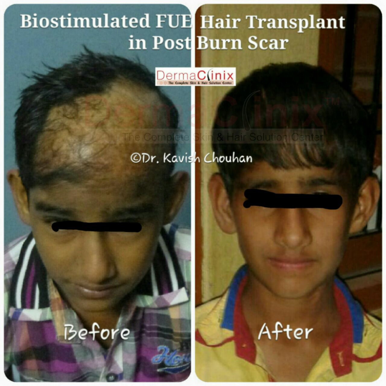 535282deff59f3845a3fa476b563611cb2894_hair-transplant-in-post-burn-scar-13.jpg
